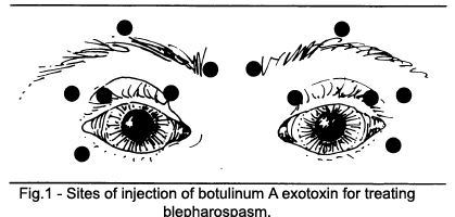 Sites of injection of botulinum A exotoxin for treating blepharospasm